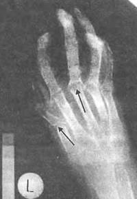 Анкилоз, либо костное сокращение суставных поверхностей