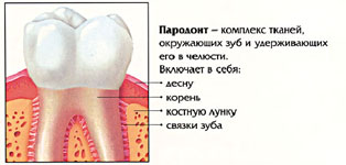 Заболевания пародонта